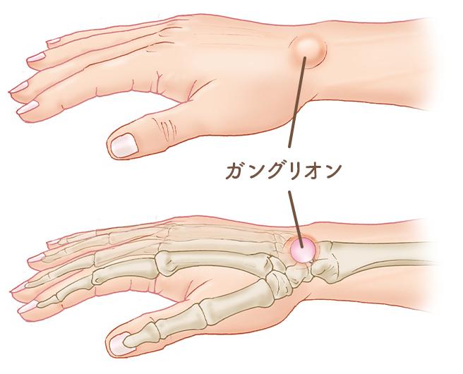 手 を つく と 手首 が 痛い
